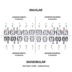 Bráquete ADV Roth 0.22 c/ Gancho Kit 10 Casos 10.10.2910 - Orthometric